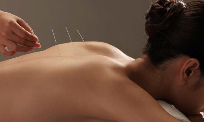 Acupuncture Anywhere Acupuncture Treatment- Anxiety